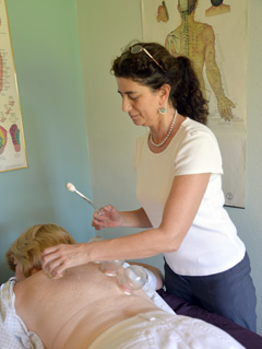 Cupping and Gua Sha Panama Beach FL
