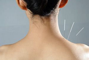 Acupuncture Dr. Anaya Palay Panama City Beach FL