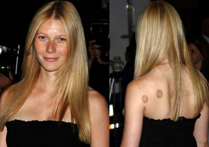 Gwyneth Paltrow with typical cupping marks.